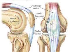 Pengapuran Tulang Sendi